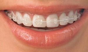 q-fixed-braces