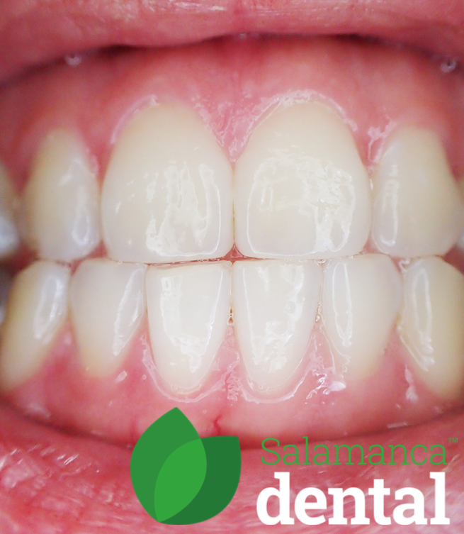 Smile, teeth, gums health, disease, periodontitis, perio, periodontics,